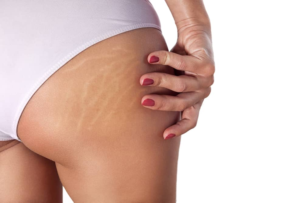 Las estrías se pueden atenuar tomando las medidas necesarias antes de que estas lineas anti estéticas empiecen a aparecer en la piel